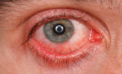 Chronic conjunctivitis eye with red iris and pus close-up.