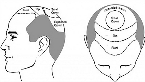 Hair Transplant in Jaipur Cost