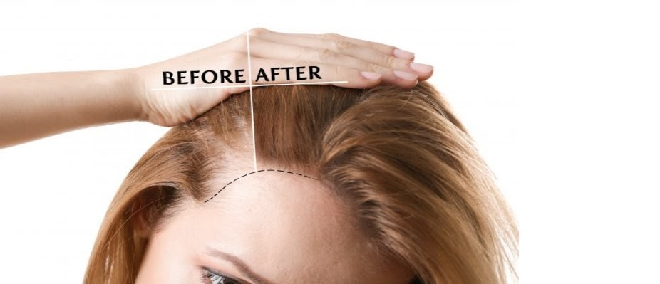 cost-of-hair-transplant-surgery-in-jaipur-JSC