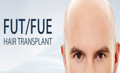 FUT and FUE Hair Transplant
