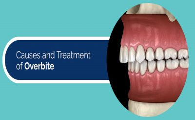 Causes and Treatment of Overbite - Dental Clinic London