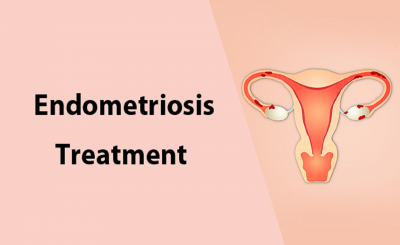 Endometriosis treatment