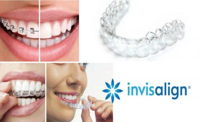 Invisalign treatment in London