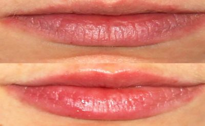 lip filler injections in London